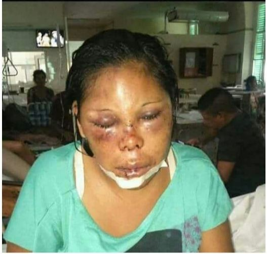 Una mujer fue brutalmente agredida en Helvecia