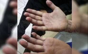 Pérez Corradi intentó borrarse todas las huellas dactilares