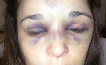 San Luis: una mujer recibió una brutal golpiza por parte de su pareja y ahora lucha por su vida