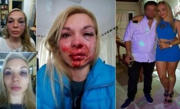 Una personal trainer fue desfigurada a golpes por su pareja