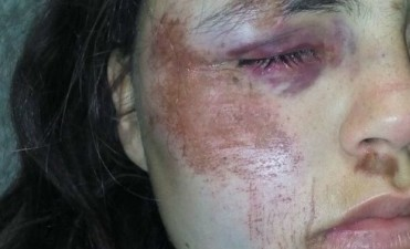 Violó la perimetral y con otros tres hombres golpeó a su ex