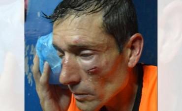 Salvaje agresión de hinchas a un árbitro en el Ascenso: le desfiguraron la cara